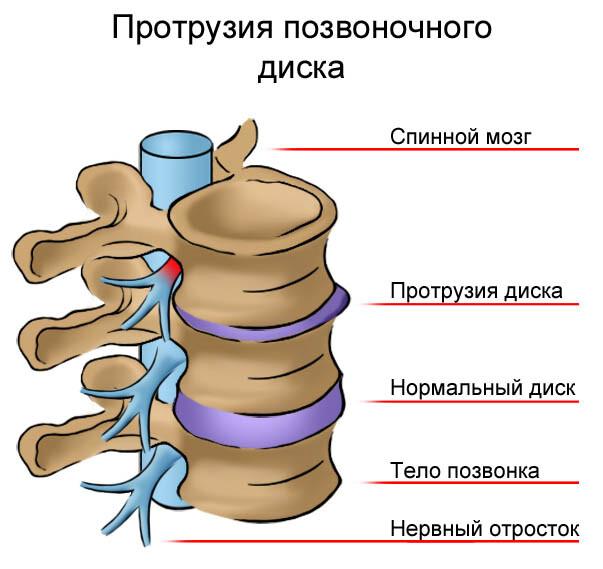 Диагноз протрузия дисков позвоночника как лечить