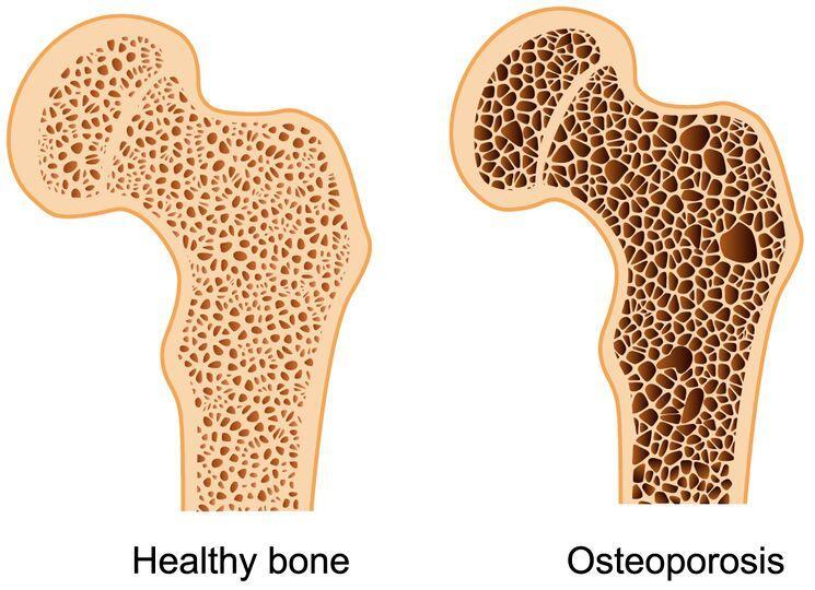 причины хрупкости костей при остеопорозе