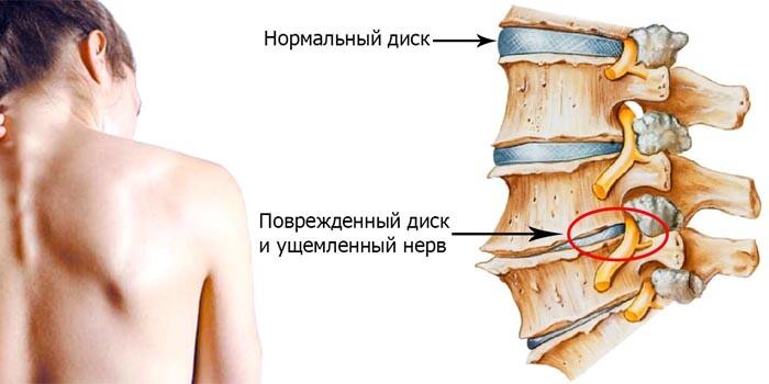 Лечение позвоночника в одессе