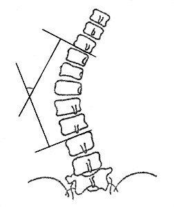 Измерение угла сколиотической дуги по методу Кобба