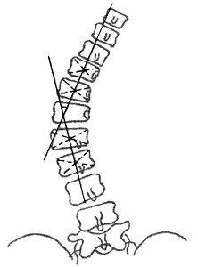 Измерение угла сколиотической дуги по методу Лекума