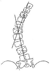 Измерение угла сколиотической дуги по методу Фергюссона
