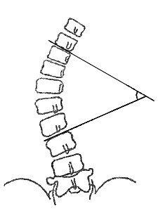 Модификация метода Кобба