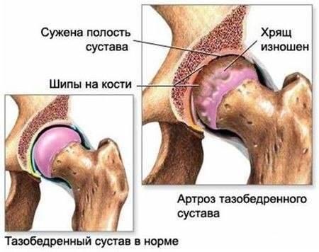 Артроз кетонал крем
