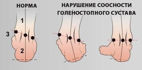 Гимнастика для коррекции и лечения плоскостопия.