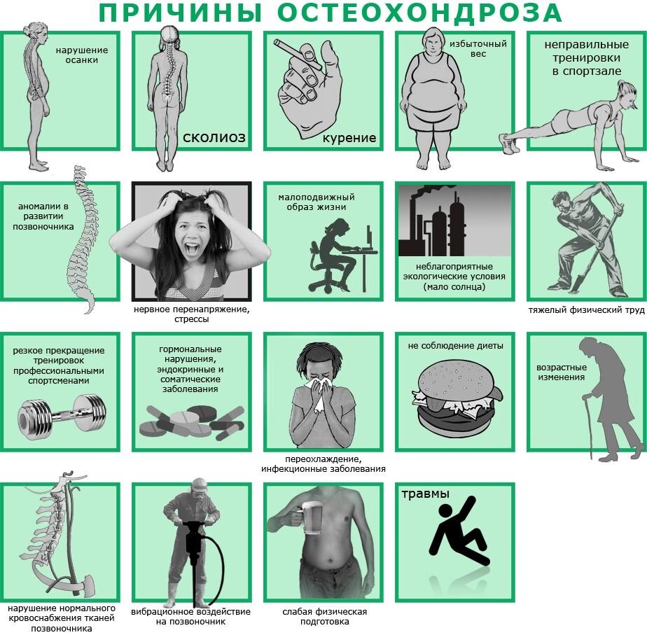 Стадии-остеохондроза