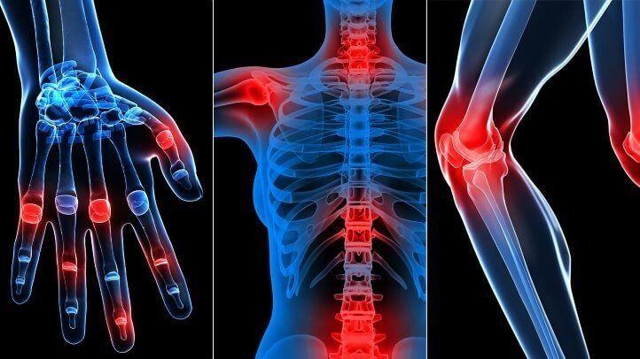 10 мифов о заболеваниях суставов