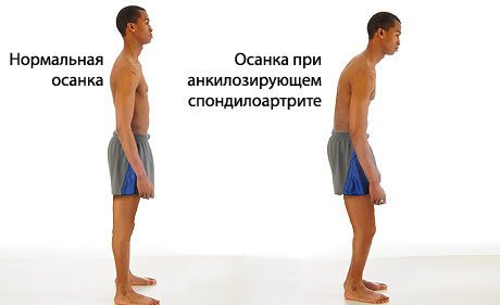 Анкилозирующий спондилоартрит